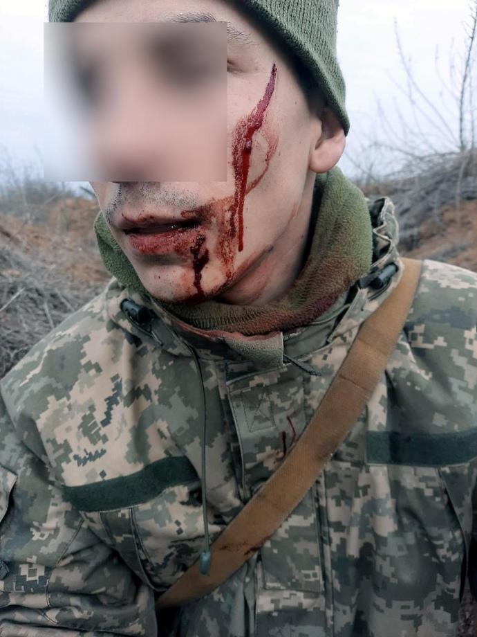 На Донбассе с боем задержали военного России - фото 2