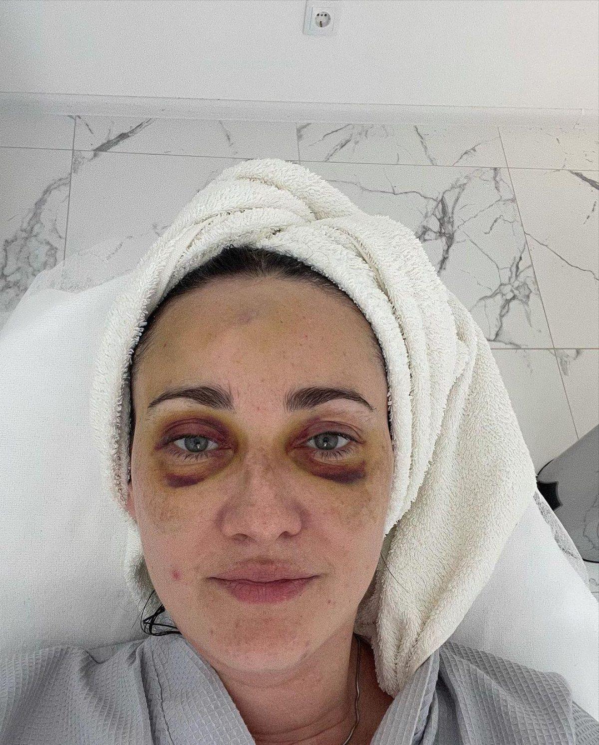 Витвицкая показала ужасные синяки на лице и рассказала о своем самочувствии после ДТП (ФОТО) - фото 3