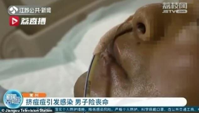 Треугольник смерти: в Китае мужчина чуть не умер из-за прыща на лице - фото 3