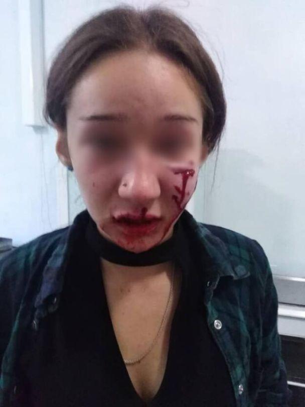 В Днепропетровской области домашняя собака растерзала лицо подростка (ФОТО)  - фото 2