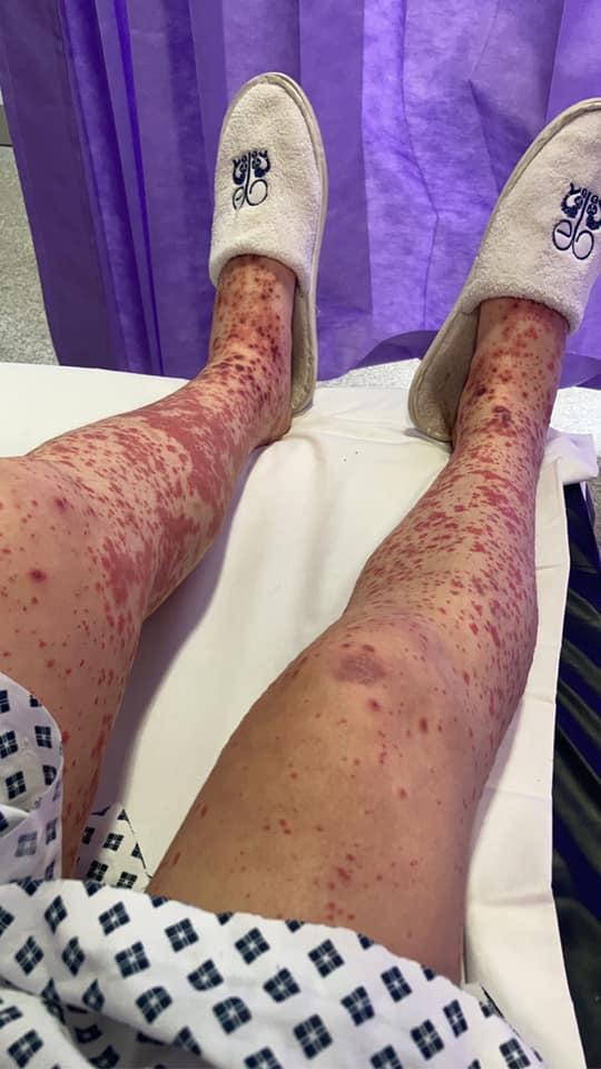 У Британії дівчина отримала розрив вен і опинилася в інвалідному кріслі після вакцинації від коронавируса - фото 3