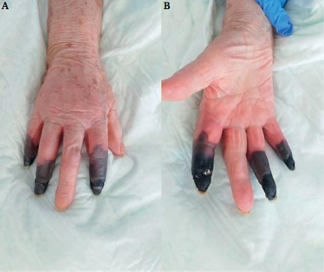 В Италии у пациентки с COVID-19 развилась гангрена: что говорят медики - фото 2